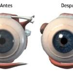 Con el primer uso de este ingrediente comienza a notar la mejora en su visión! Después del 4to uso obtendrá una vista como la de 30 años…