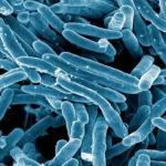 La tuberculosis provoca autoinmunidad para abrirse paso y contagiar a otras personas