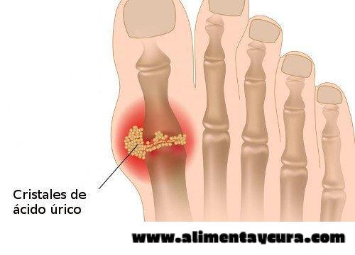 dieta para controlar acido urico alto como se cura a gota acido urico elevado en ninos