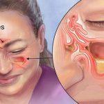 Una gota de esto elimina la sinusitis, dolor de cabeza y otros trastornos en pocos días