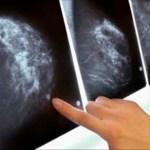 Científicos holandeses acaban de extirpar tumores de cáncer de mama en menos de 11 días sin quimio