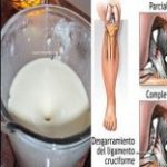 Elimine el dolor de rodilla y articulaciones en un día sin ir al médico. Solo utiliza esto!