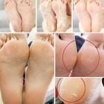 Increible Usa Solo estos 4 ingredientes y tus pies lucirán increíbles desde la primera aplicación