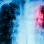 La bebida que limpia los pulmones que cualquier persona que fuma o que nunca ha fumado necesita probar