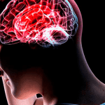 Mira Estos Síntomas Que Alertan De Un Derrame Cerebral Antes De Que Pase… Tienes Que Leerlo ¡Podría Salvar Tu Vida!
