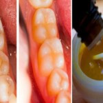 Aprende a curar las caries con esta pasta de dientes casera muy efectiva!