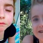Esta joven se curó de lupus y artritis mediante la eliminación de estas 3 cosas de su dieta