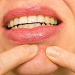 Lo que significa el acné en diferentes partes de la cara