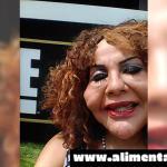 Esta Mujer Se Quería Quitar Las ARRUGAS Del Rostro, Pero El Médico Le Inyectó ESTO… 11 Años Después El Cambio Es Total ¡OMG!