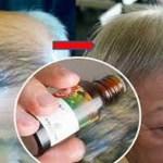 Esta señora se repone de la calvicie y recupera en 1 mes su cabello con 5 gotas de este jarabe de aceites