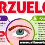 Qué Son Los Orzuelos, Cómo Prevenirlos Y Curarlos De Forma Natural…Luego De Ver ESTO Te Olvidarás De Ellos Para Siempre!