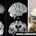 Un hombre tomo 2 cucharadas de aceite de coco 2 veces por día durante 2 meses, ¡su cerebro cambió!