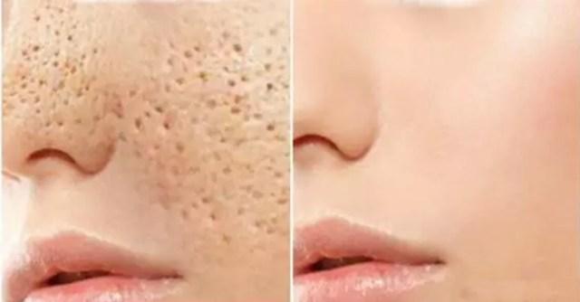 Resultado de imagen para como deshacerse de los poros abiertos