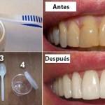 Cómo deshacerse de la placa y blanquear sus dientes sin costosos tratamientos