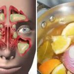 """Le Llaman Bebida """"BOMBA"""" Porque Ayuda a Combatir la Gripe, Sinusitis e Infecciones Vitales"""