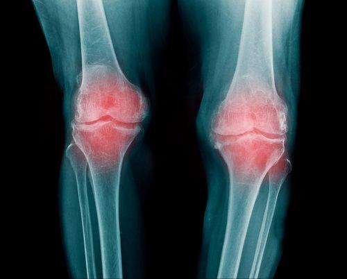 Más sobre la osteoartritis