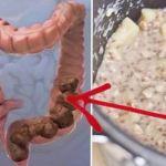 Come más de estos laxantes naturales y empezaras a ir regularmente al baño desintoxicando el intestino.