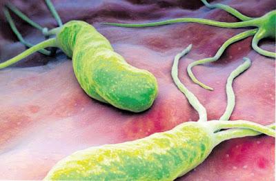 Método natural para eliminar la bacteria Helicobacter ...