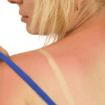 Vitaminas y minerales para las quemaduras de sol