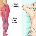 Remedio para el dolor de #ciatica
