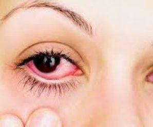Remedios caseros efectivos para eliminar la conjuntivitis