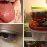 Síntomas de deficiencia de vitamina B12 que la mayoría de las personas ignoran
