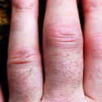 Tratamiento para la artritis – medicamentos, remedios, suplementos, tratamiento natural