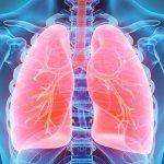 Dieta para desintoxicar pulmones en tres días