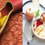 Esta es la apariencia correcta para sanar el colesterol alto sin usar medicamentos