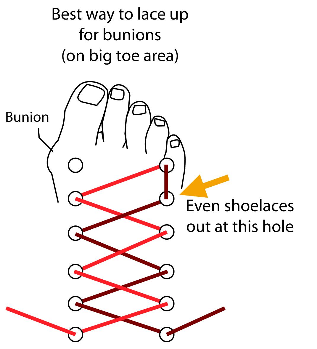 diagram of bunion [ 1071 x 1178 Pixel ]