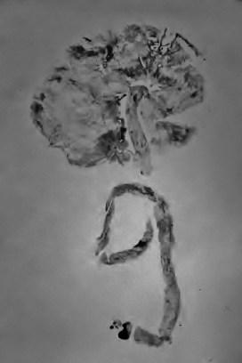 Placenta Print BW