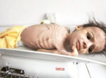 Yemen: Tweets And Reports Will Not Feed The Children ...