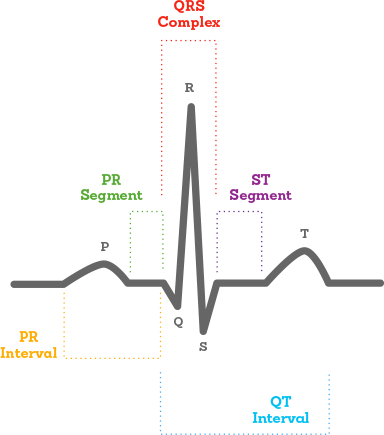 Related Keywords & Suggestions for ecg diagram