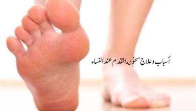 أسباب وعلاج سخونة القدم عند النساء
