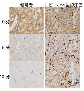 synuclein blog 20160318 PD DLB-02+