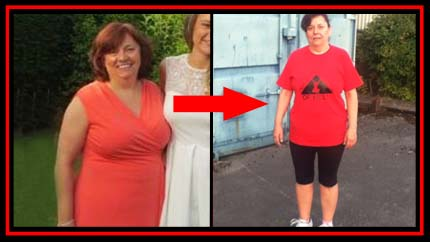 sue-before-after-image-1