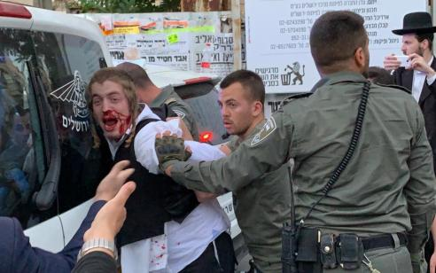 מזעזע: שוטרים עצרו בכוח נער בעל מוגבלות ופצעו אותו – הוא שוחרר על ידי מנהל המוסד בו הוא שוהה