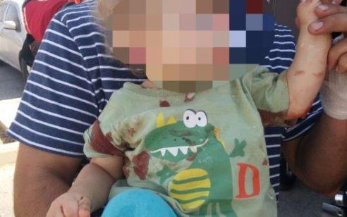 תאונת פגע וברח סמוך ליער בית קשת: פעוט כבן שנתיים נפצע קשה מפגיעת אופנוע שנמלט
