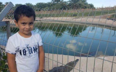 """ביה""""ח סורוקה: מוסיף להשתפר מצבו של הילד בן ה-4 שננשך ע""""י תנין בידו"""