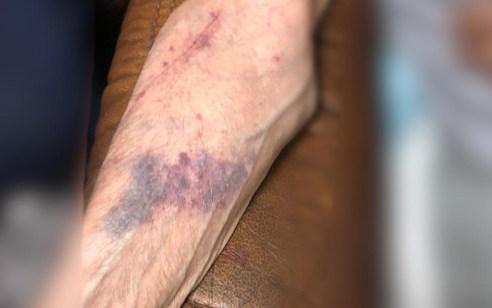 מטפל זר פיליפיני נעצר בחשד שתקף קשיש בו הוא מטפל וגרם לו חבלות