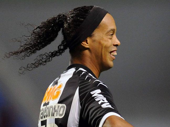διασημότεροι, άσχημοι celebrities Ronaldinho allabout.gr