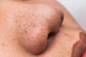 Definition and Causes of Blackheads