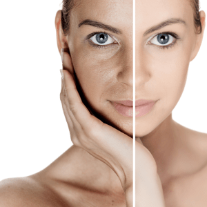 Benefits of Glycolic Acid for Your Skin
