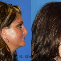 Primary Rhinoplasty - What Can You Expect?