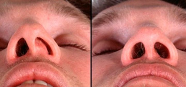 Photos of a deviated septum Headache and Nosebleed: Causes, Photos, and