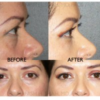Using Nanofat to Improve the Results of Revision Rhinoplasty
