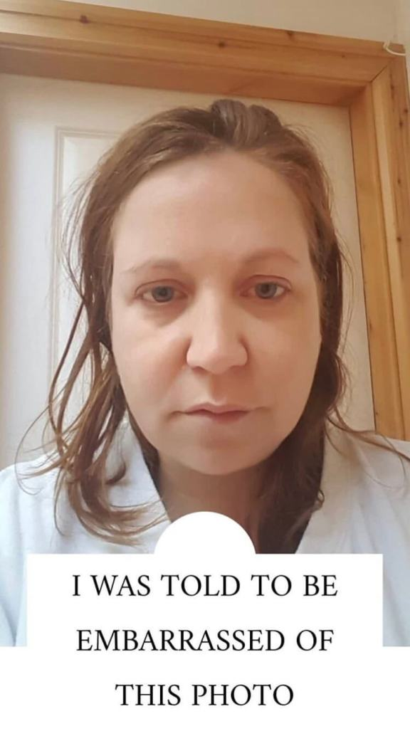 woman ill with lyme disease