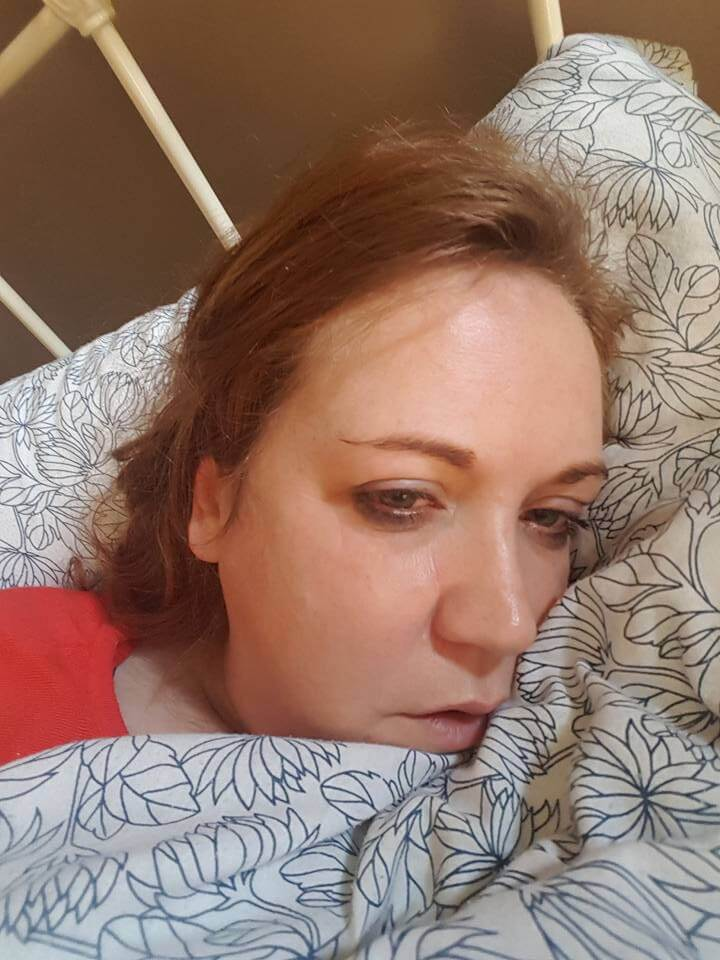 Woman in bed ill with lyme disease.