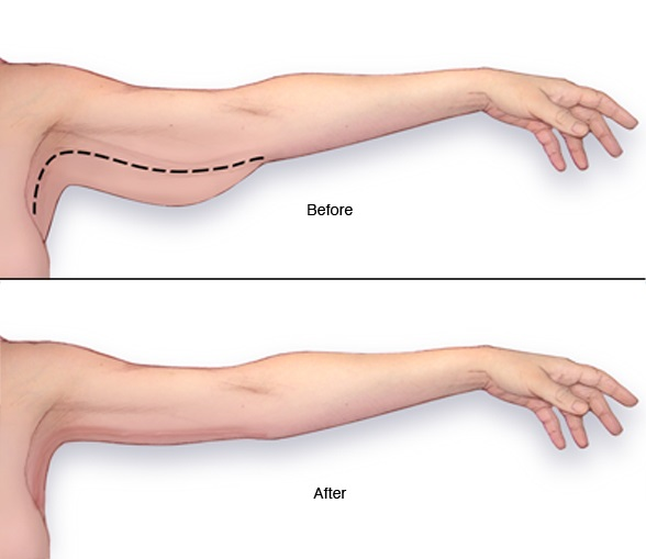 Arm-Reduction