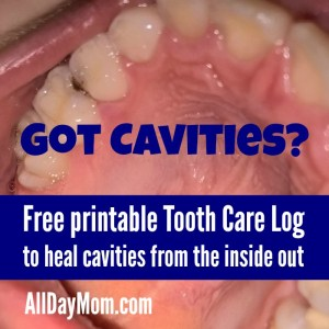 How to Heal Cavities Naturally and Free Printable Tooth Care Log for Kids